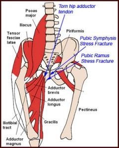 Hip and groin - Platinum Physiotherapy