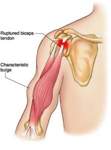 Ray Lewis – Torn Triceps | Injury Banter
