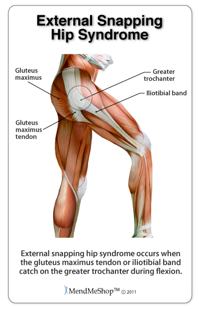 tight hip flexors while sitting